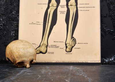 19th Century Anatomical Lithograph Poster 4
