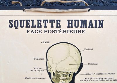 19th Century Anatomical Lithograph Poster 2