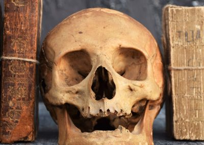 The Human Skull 003 4