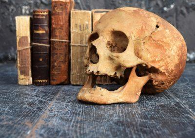 The Human Skull 003 7