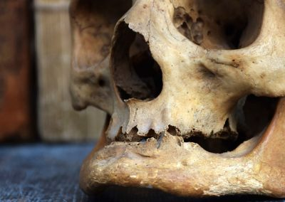 The Human Skull 003 10