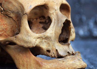 The Human Skull 003 12