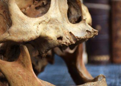 The Human Skull 003 3