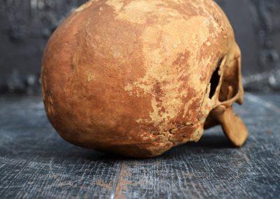 The Human Skull 003 6