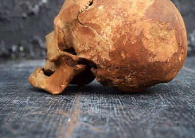 The Human Skull 003 11