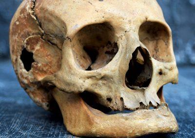 The Human Skull 003 8