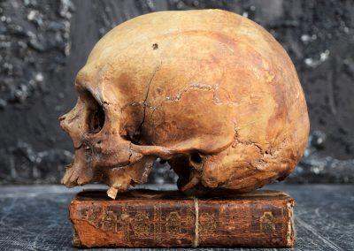 The Human Skull 004 4