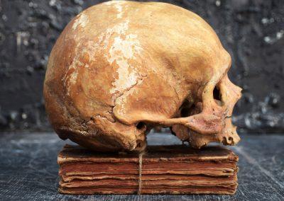 The Human Skull 004 9