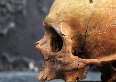 The Human Skull 004 10
