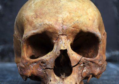 The Human Skull 004 5