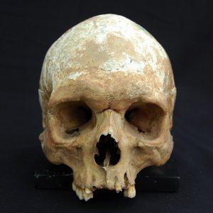 Human Skull 001 (SOLD)