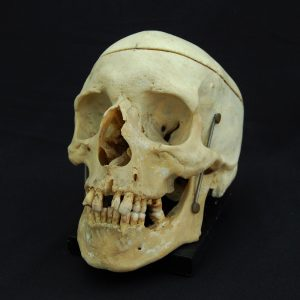 Articulated Human Skull (SOLD)