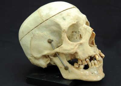 Articulated Human Skull (SOLD) 4