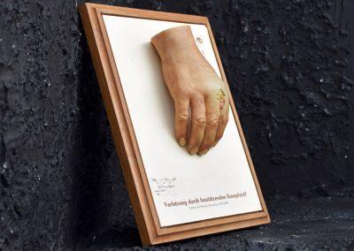 Dresden Museum Wax Hand 2