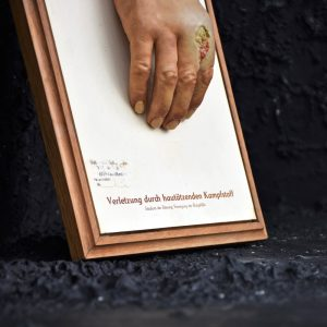 Dresden Museum Wax Hand