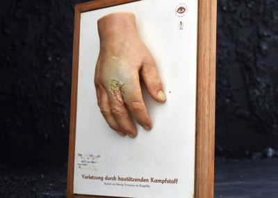 Dresden Museum Wax Hand 4