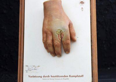 Dresden Museum Wax Hand 3