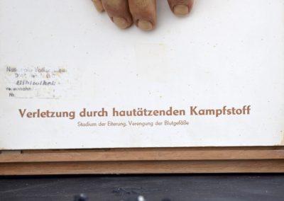 Dresden Museum Wax Hand 6